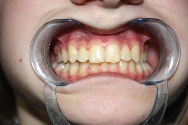 Efekt końcowy po leczeniu. Ortodonta Gdynia.