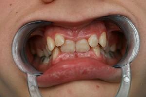 Przed leczeniem. Ortodonta Gdynia.
