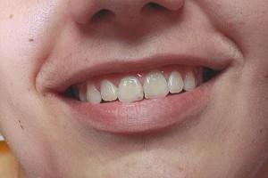 Efekt końcowy leczenia. Ortodonta Gdynia.