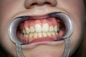 Efekt końcowy leczenia. Ortodoncja Gdynia.