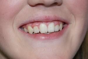 Po leczeniu - efekt końcowy. Ortodonta Gdynia.