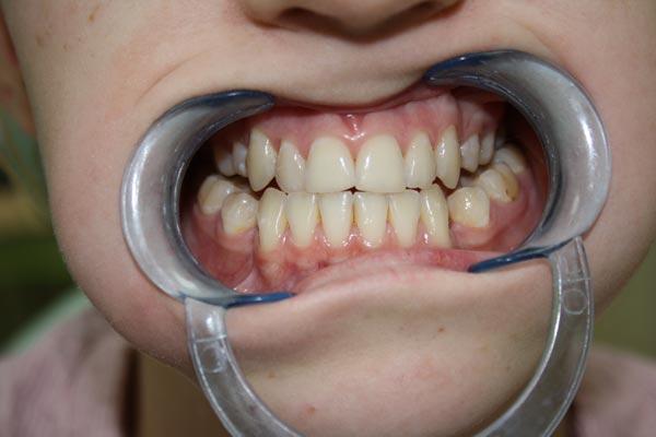 Przed leczeniem. Ortodoncja Gdynia.