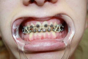 Końcowy etap leczenia. Ortodonta Gdynia.